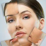 עור חסר זוהר – חידוש העור